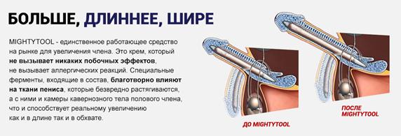 мнения врачей мультитул1