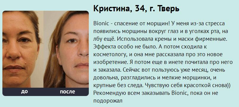 РЕАЛЬНЫЕ ОТЗЫВЫ О «Bionic»2