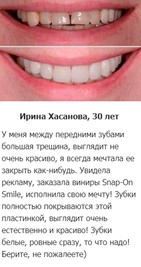 РЕАЛЬНЫЕ ОТЗЫВЫ О «Snap On Smile»2