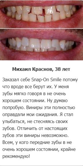 РЕАЛЬНЫЕ ОТЗЫВЫ О «Snap On Smile»3