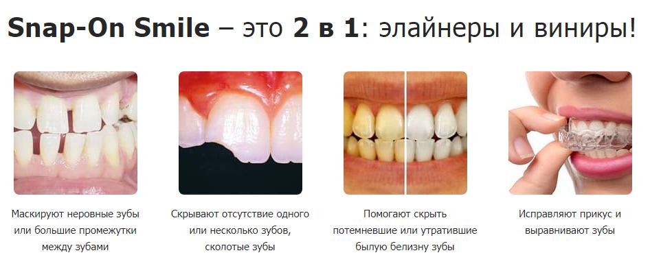 Snap On Smile отзывы специалистов