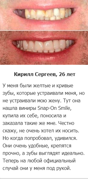 РЕАЛЬНЫЕ ОТЗЫВЫ О «Snap On Smile»