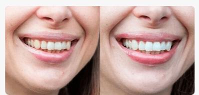 РЕАЛЬНЫЕ ОТЗЫВЫ О «Dental Spa»2