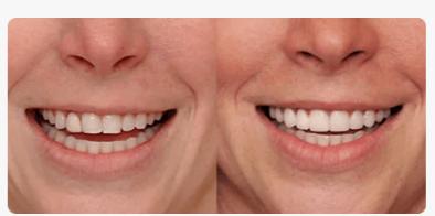 РЕАЛЬНЫЕ ОТЗЫВЫ О «Dental Spa»3