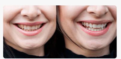 РЕАЛЬНЫЕ ОТЗЫВЫ О «Dental Spa»