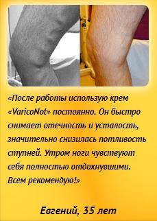 РЕАЛЬНЫЕ ОТЗЫВЫ О «Variconot»2