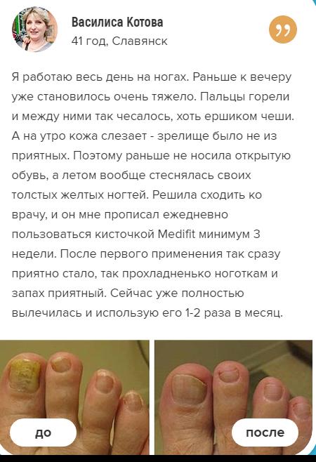 РЕАЛЬНЫЕ ОТЗЫВЫ О «Medifit»2
