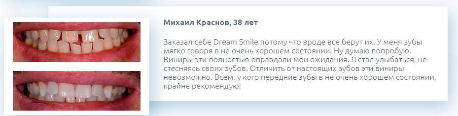 РЕАЛЬНЫЕ ОТЗЫВЫ О «Dream Smile»3