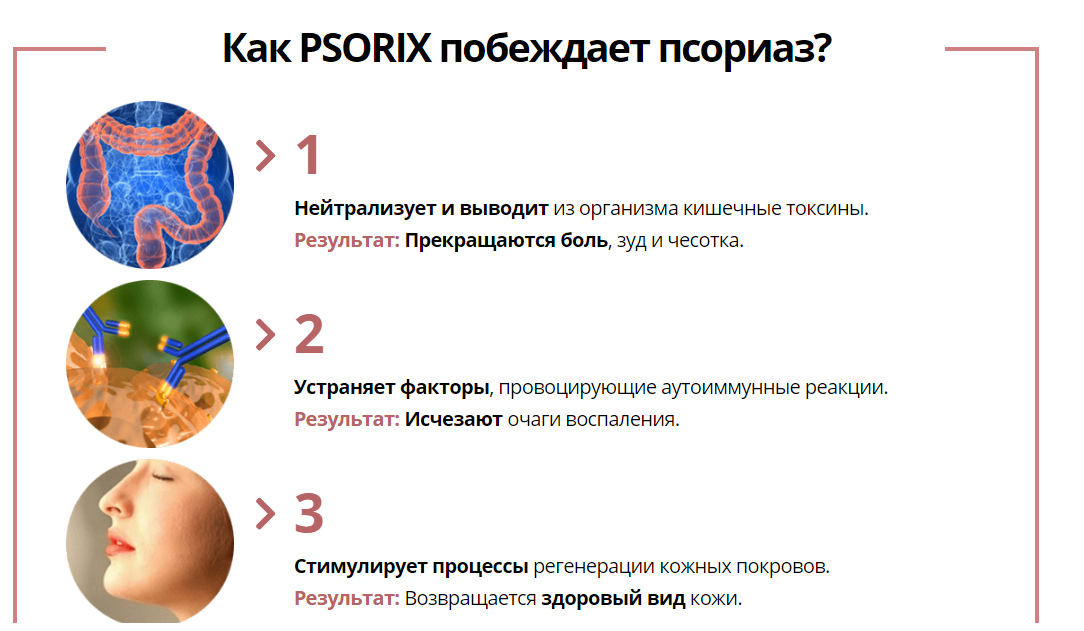 Psorix отзывы специалистов 2
