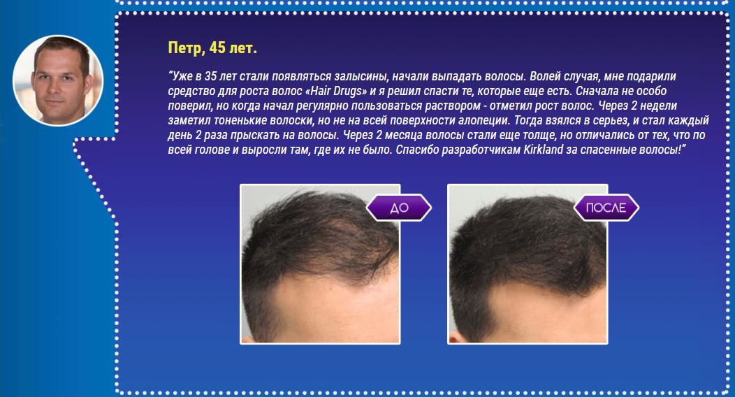 РЕАЛЬНЫЕ ОТЗЫВЫ О «Hair Drugs»2