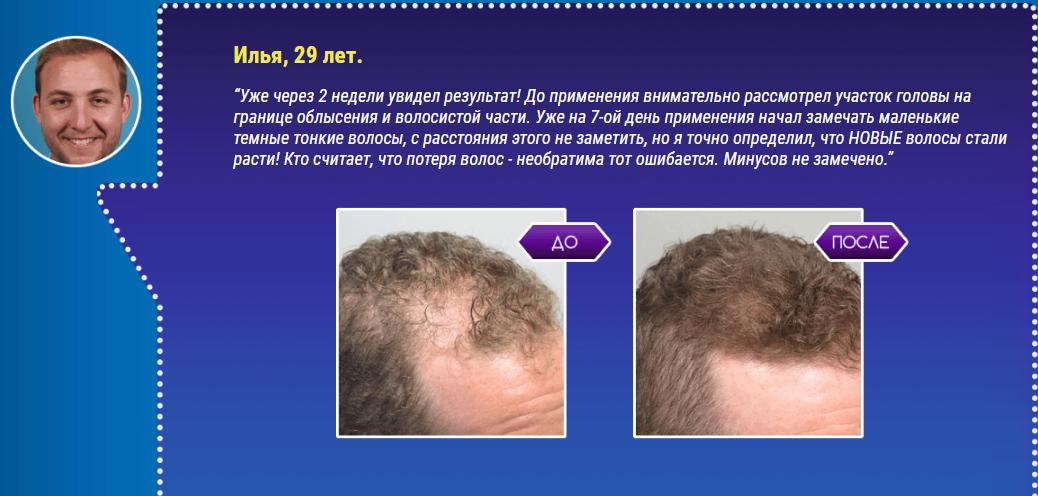 РЕАЛЬНЫЕ ОТЗЫВЫ О «Hair Drugs»3