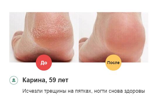 РЕАЛЬНЫЕ ОТЗЫВЫ о «Миковизин»1