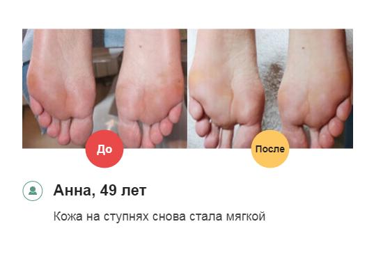 РЕАЛЬНЫЕ ОТЗЫВЫ о «Миковизин»2