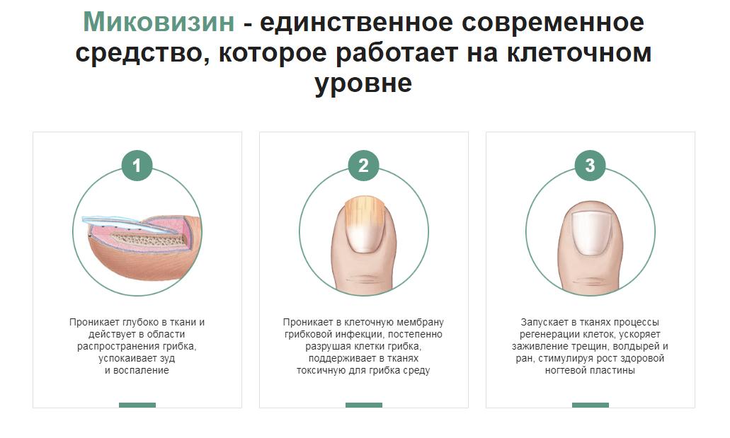 Миковизин отзывы специалистов