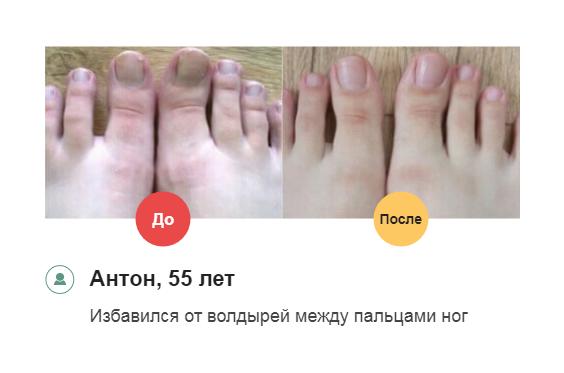 РЕАЛЬНЫЕ ОТЗЫВЫ о «Миковизин»