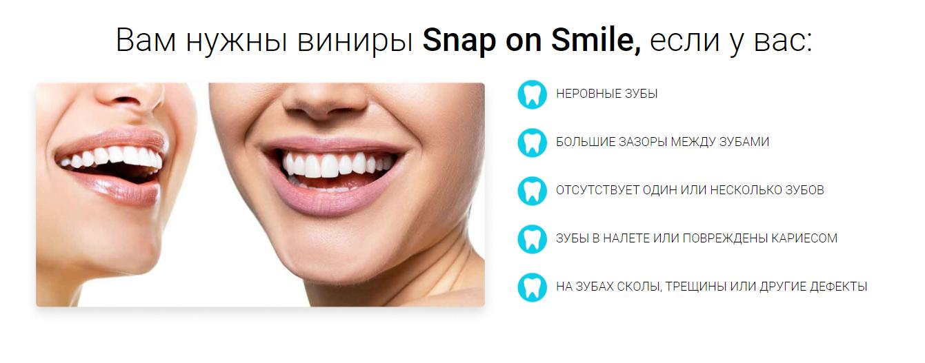 Snap-On Smile отзывы специалистов 1