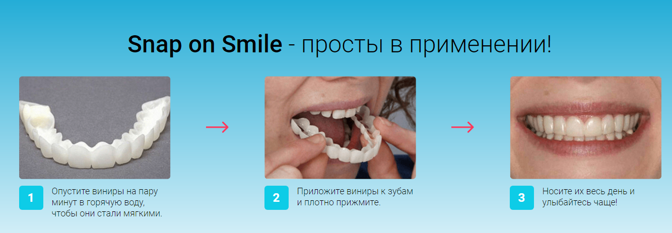 Snap-On Smile отзывы специалистов 2